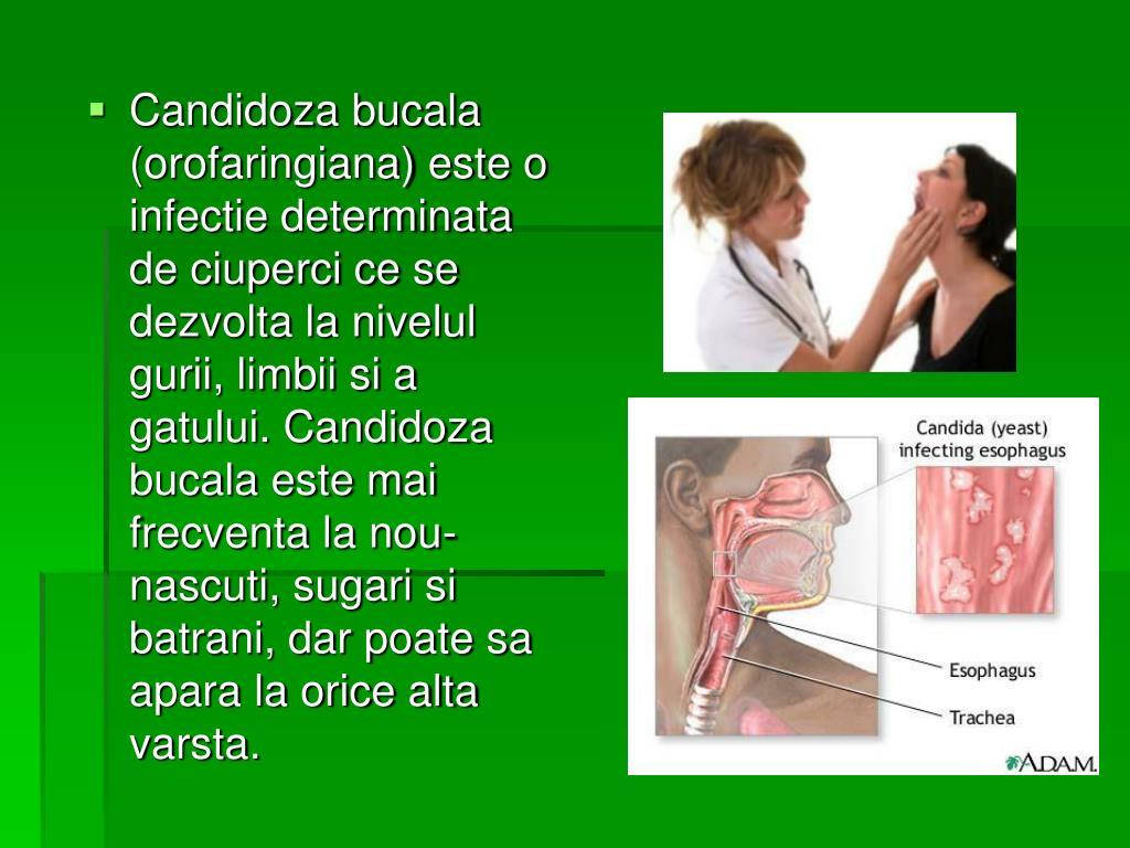 Candidose buccale: détails, traitements et remèdes adulte - bébé