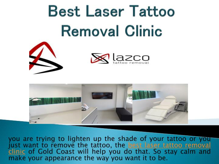 Ppt find the best tattoo removal clinic for easy tattoo for Tattoo removal clinic