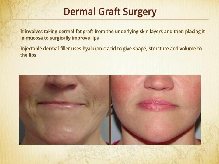 Dermal Graft Surgery