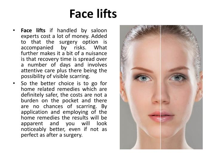 Face lifts