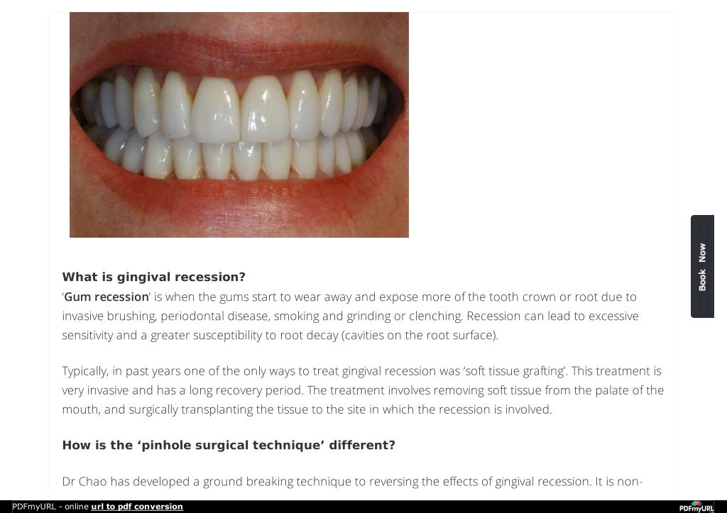 PPT - Best Gingival Recession Treatment Canada PowerPoint