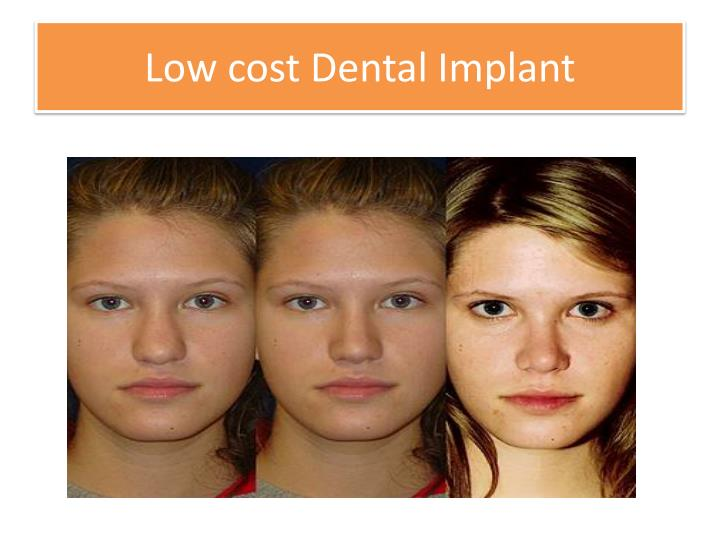Low cost Dental Implant