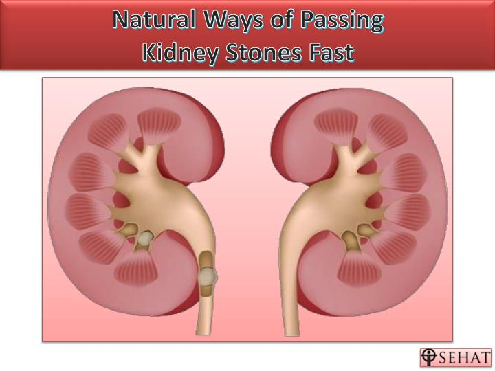 PPT - Natural Ways of Passing Kidney Stones   Sehat com PowerPoint
