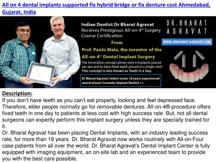 PPT - All on 4 dental implants supported fix hybrid bridge or fix