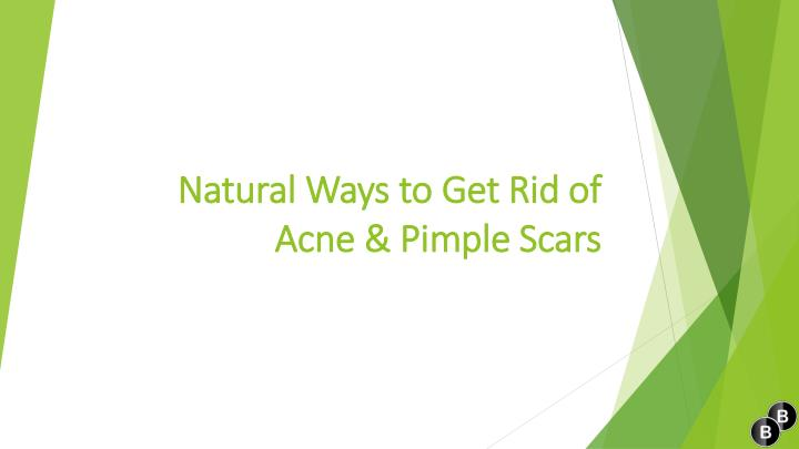 natural ways to get rid of acne pimple scars n.