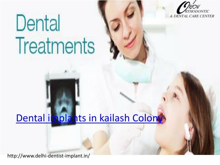 Dental implants in