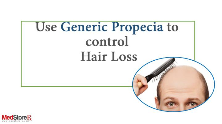 use generic propecia to control hair loss n.