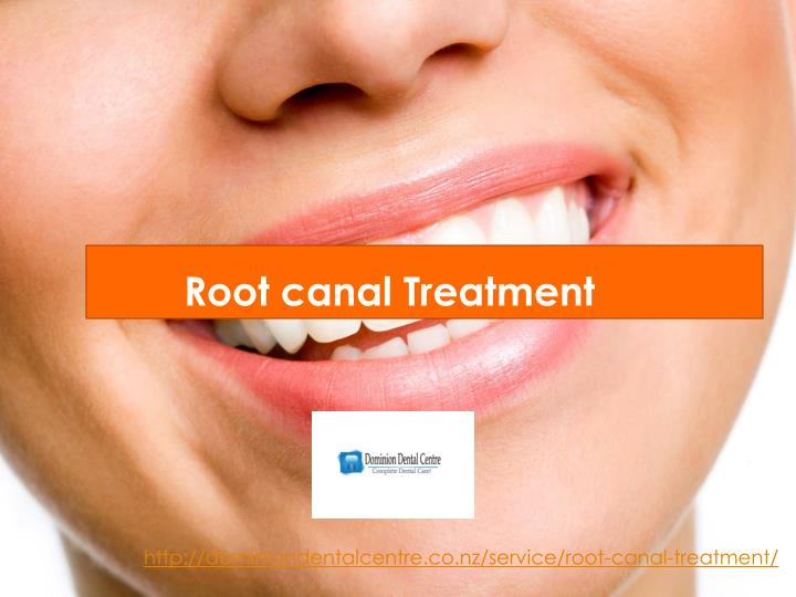 root canal treatment n.