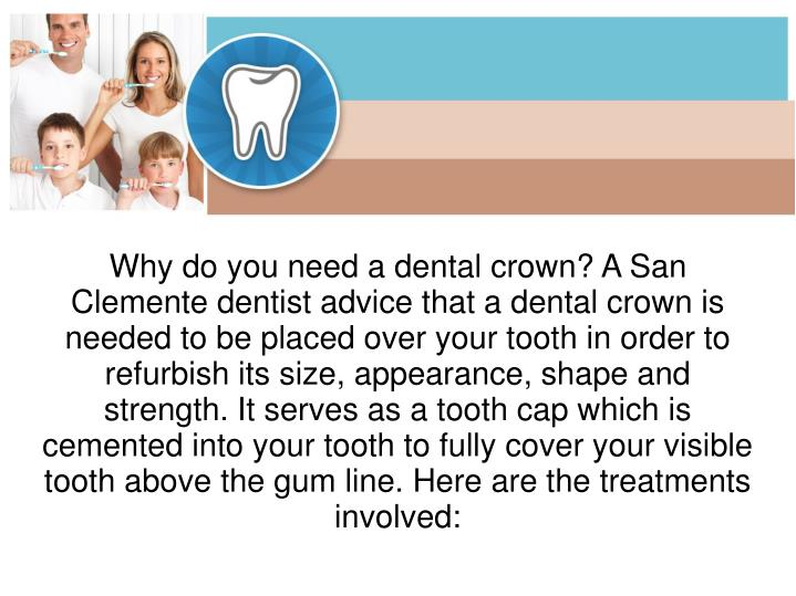 Why do you need a dental crown? A San Clemente dentist advice that a dental crown is needed to be placed over your tooth in order to refurbish its size, appearance, shape and strength. It serves as a tooth cap which is cemented into your tooth to fully cover your visible tooth above the gum line. Here are the treatments involved: