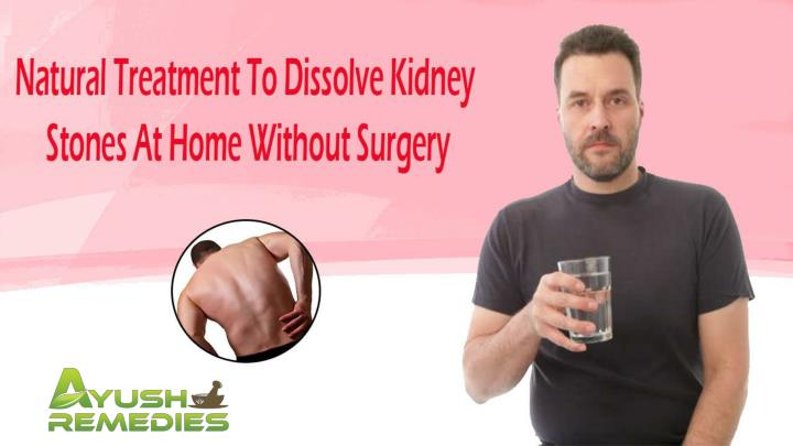 Natural treatment to dissolve kidney stones at home without surgery