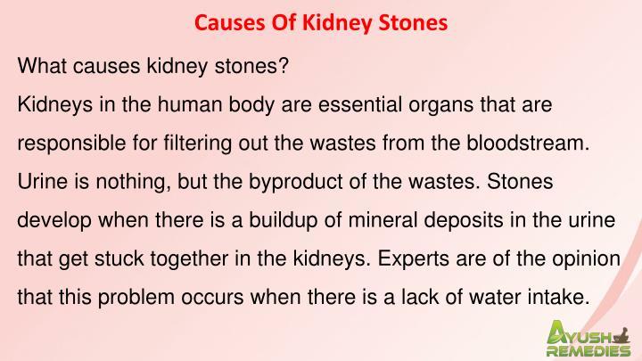 Causes Of Kidney Stones