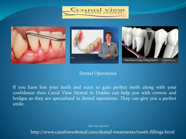 Dental Operations