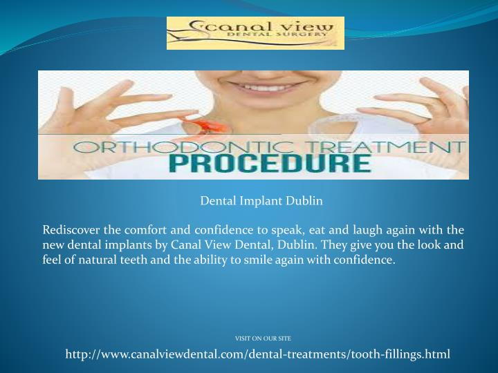 Dental Implant Dublin