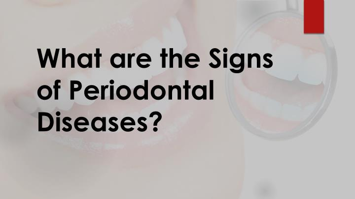 what are the signs of periodontal diseases