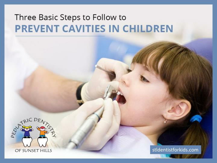 Three basic steps to follow to prevent cavities in children
