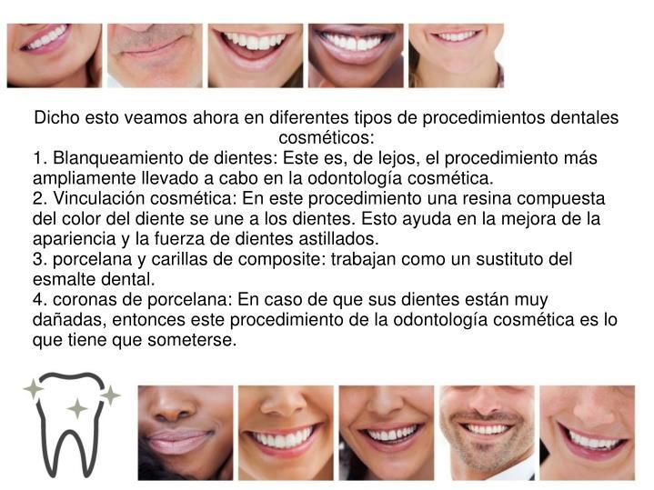 Dicho esto veamos ahora en diferentes tipos de procedimientos dentales cosméticos: