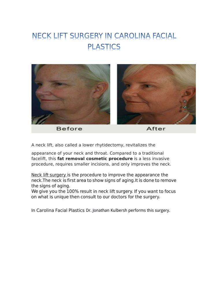 A neck lift, also called a lower rhytidectomy, revitalizes the