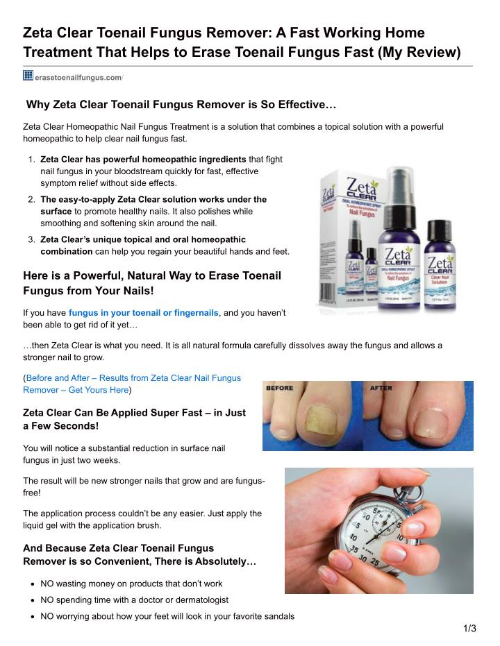 Zeta Clear Toenail Fungus Remover: A Fast Working Home