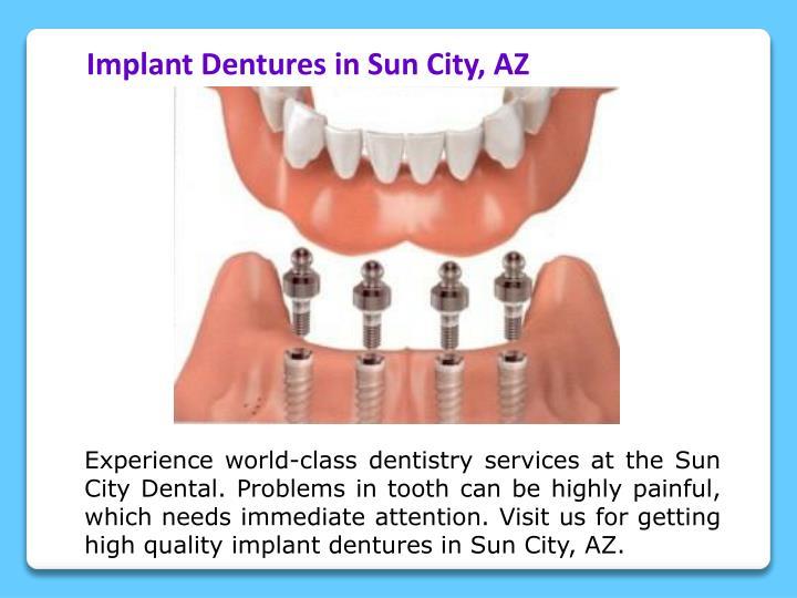 Implant Dentures in Sun City, AZ