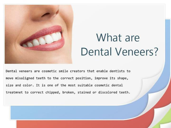 Dental veneers to make your smile shine like a celebrity