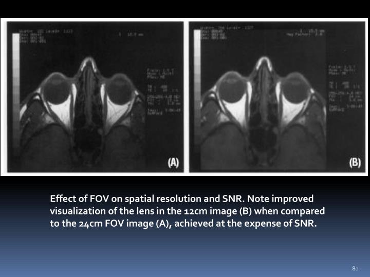Effect of FOV on spatial resolution and SNR. Note improved visualization of the lens in the 12cm image (B) when compared to the 24cm FOV image (A), achieved at the expense of SNR.