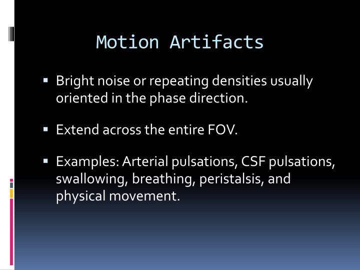 Motion Artifacts