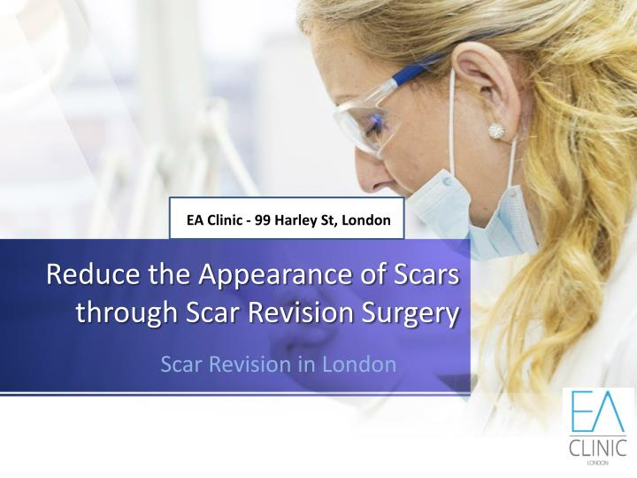 reduce the appearance of scars through scar revision surgery n.