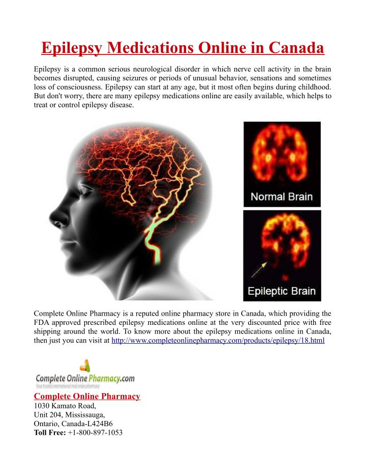 Epilepsy Medications Online in Canada