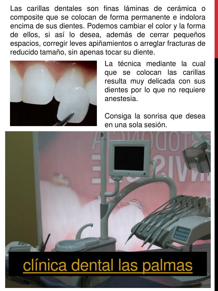 Las carillas dentales son finas láminas de cerámica o