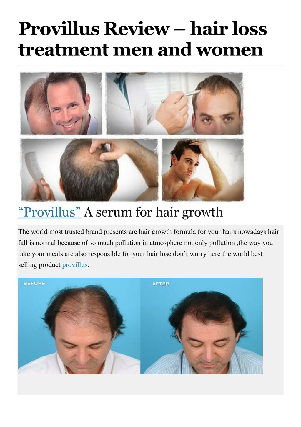 Ppt Provillus Review Hair Loss Treatment Men And Women