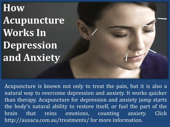 How Acupuncture Works In Depression and Anxiety