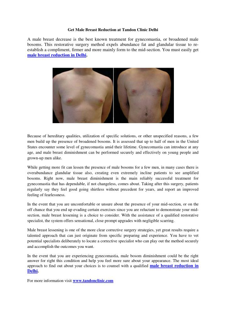Get Male Breast Reduction at Tandon Clinic Delhi
