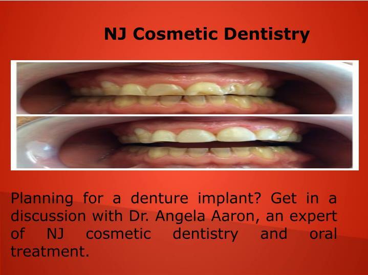 NJ Cosmetic Dentistry