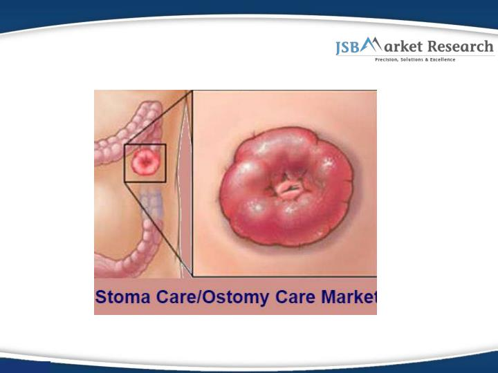 Global stoma care ostomy care and accessories market jsb market research