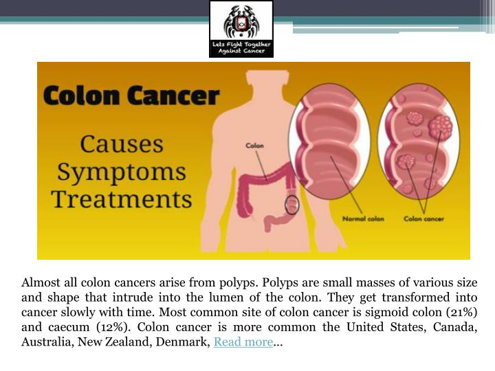 Almost all colon cancers arise from polyps. Polyps are small masses of various size