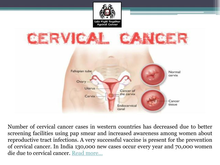 Number of cervical cancer cases in western countries has decreased due to better