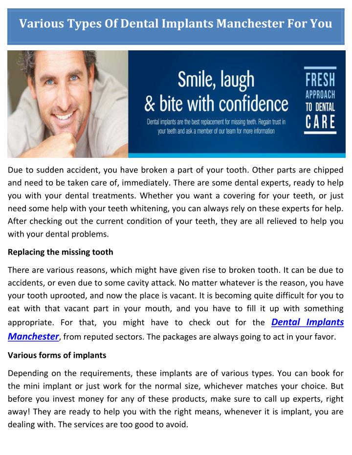 Various Types Of Dental Implants Manchester For You