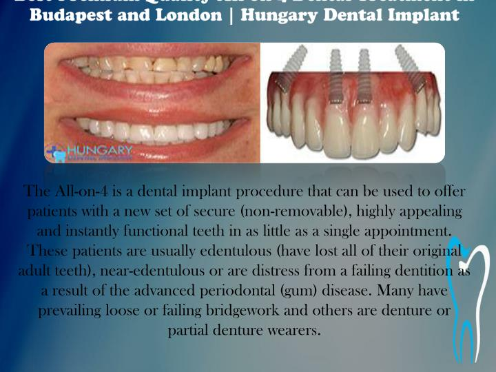 Best Premium Quality All on 4 Dental Treatment in Budapest and London | Hungary Dental Implant
