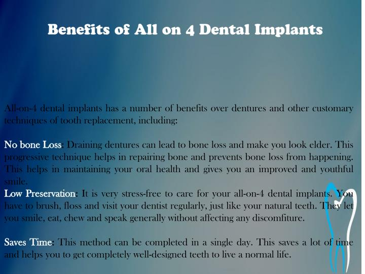 Benefits of All on 4 Dental Implants