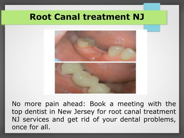 Root Canal treatment NJ