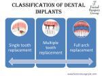 classification of dental i mplants