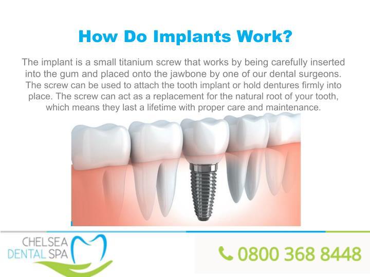 How Do Implants Work?