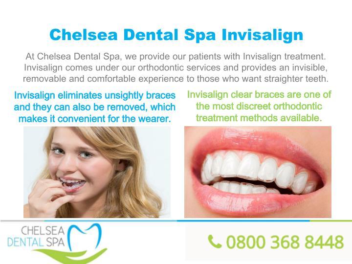 Chelsea Dental Spa Invisalign