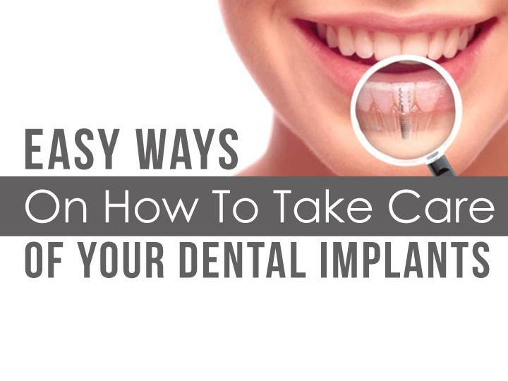 Easy Ways On How To Take Care Of Your Dental Implants