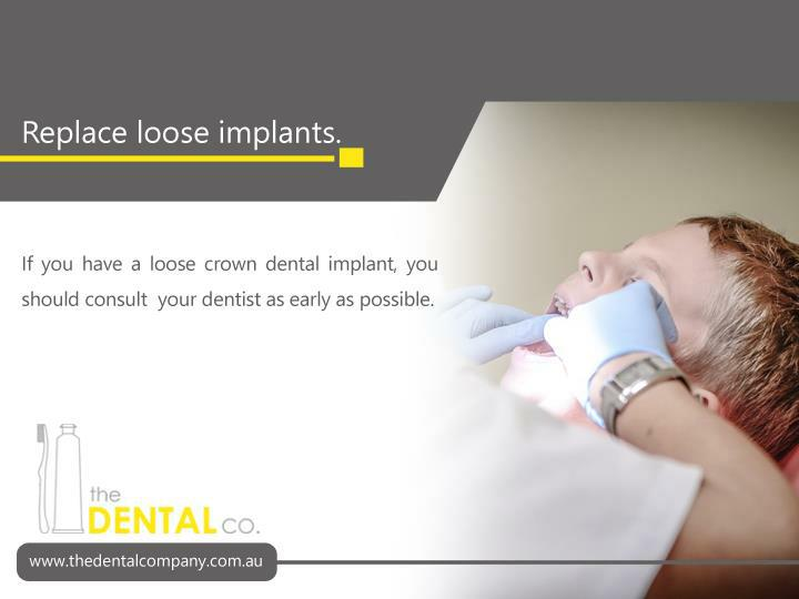 If you have a loose crown dental implant, you should consult  your dentist as early as possible.