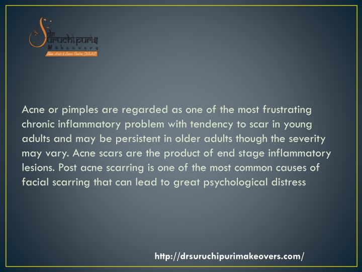 Acne or pimples are regarded as one of the most frustrating chronic inflammatory problem with tenden...