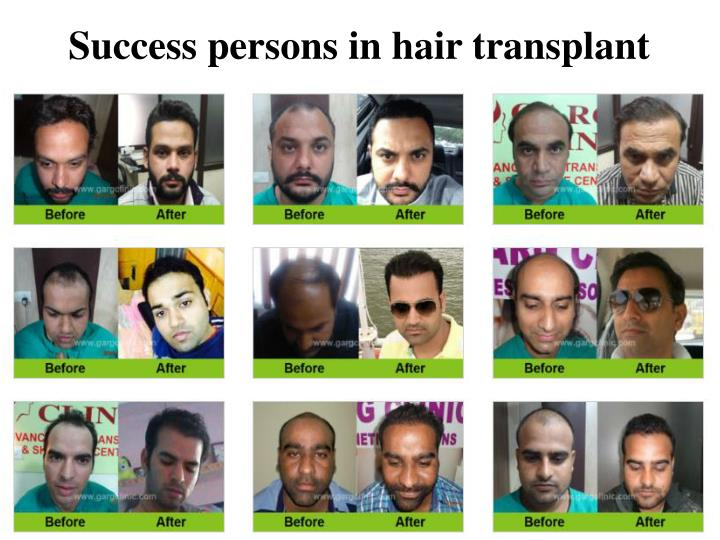 Success persons in hair transplant