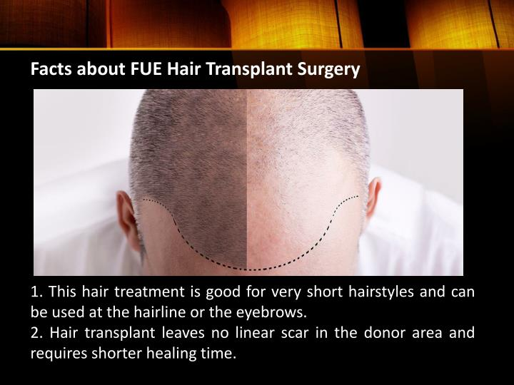 Facts about FUE Hair Transplant Surgery