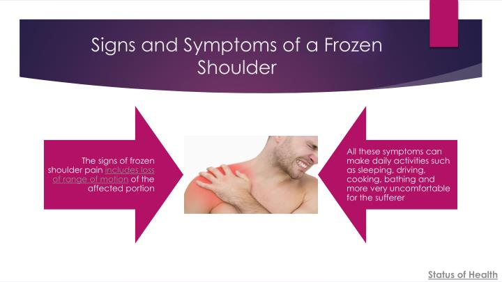 Signs and symptoms of a frozen shoulder