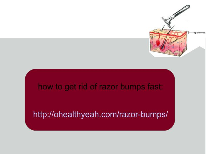 how to get rid of razor bumps fast:
